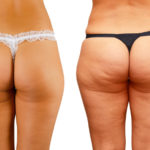 Cellulite Cure that Works